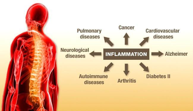 14 Natural Anti Inflammatory Foods