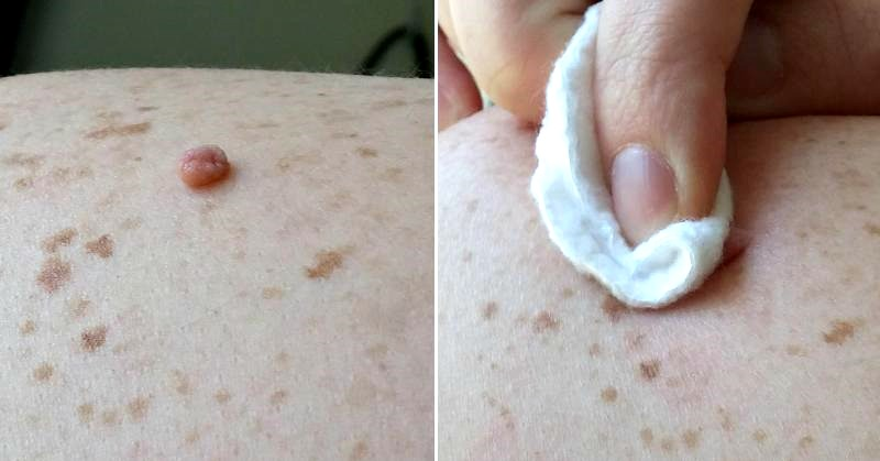 How To Remove Skin Growths Naturally