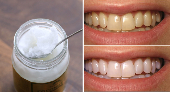Bad Breath Treatment >> Say Goodbye To Bad Breath, Plaque, Tartar And Kill Harmful Bacteria In Your Mouth With Only One ...